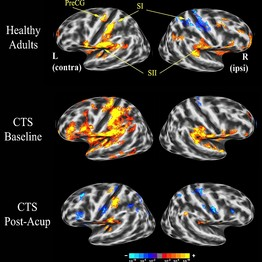 The effects of acupuncture on the brain.