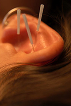 Bellmore Auricular Acupuncture / Bellmore Detoxification Acupuncturist