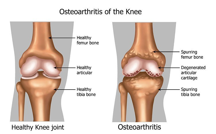 Osteoarthritis Pain Relief In Bellmore , NY - Bellmore  Acupuncture Clinic