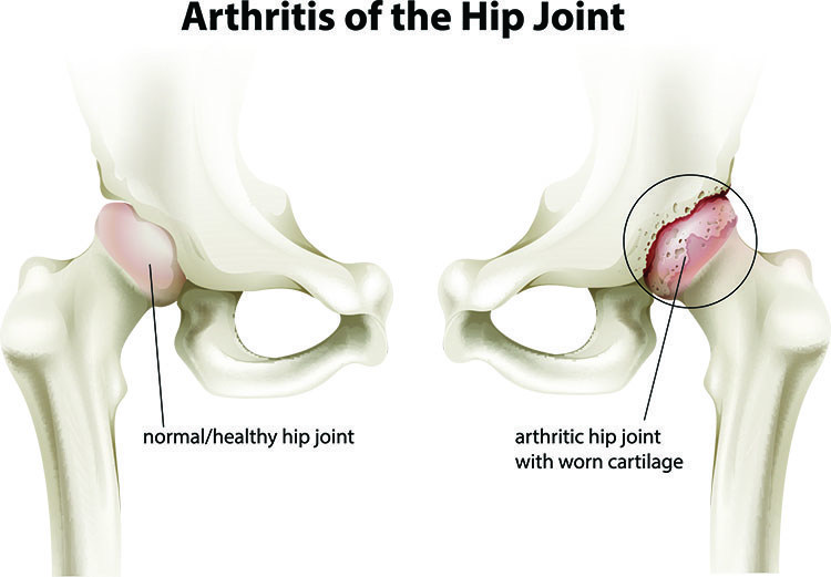 Arthritis Pain Relief In Bellmore , NY - Bellmore  Acupuncture Clinic