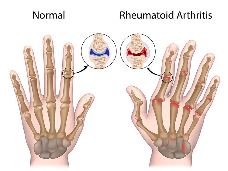 Rheumatoid Arthritis Pain Relief In Bellmore , NY - Bellmore  Acupuncture Clinic